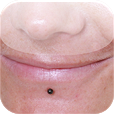 Lower labret
