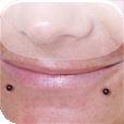 Snakebite piercing